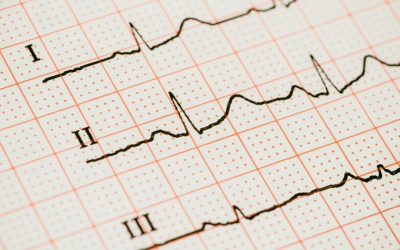 Frequently Asked Questions | Echocardiography